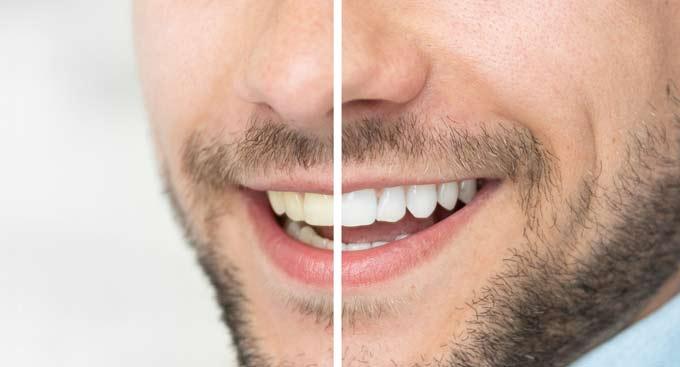 que-es-blanqueamiento-dental