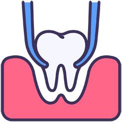 extracion-dental