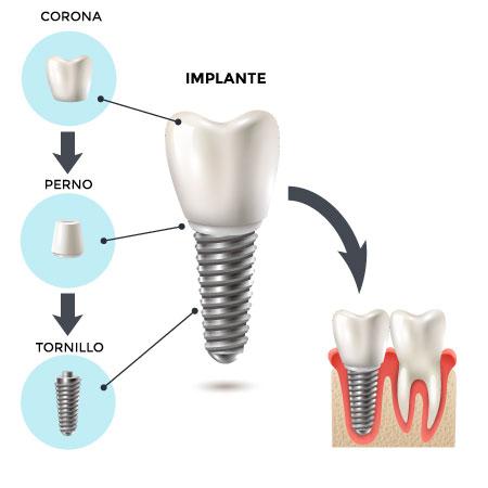 implantes-dentales-en-granada-colocacion