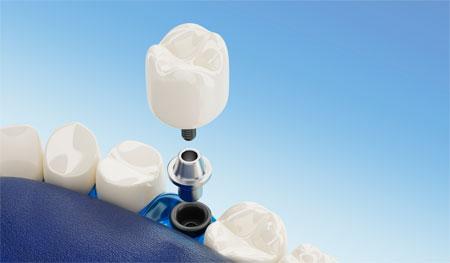 implantes-dentales-en-granada-colocaciontotal