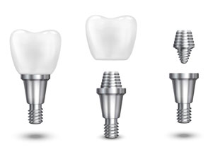 implantes-dentales-en-granada-implantestipos